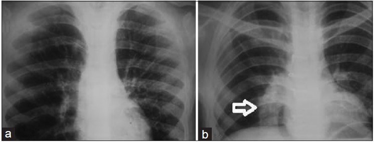 Figure 4: Preoperative (a) and postoperative (b) chest X-ray showing the graft (arrow)