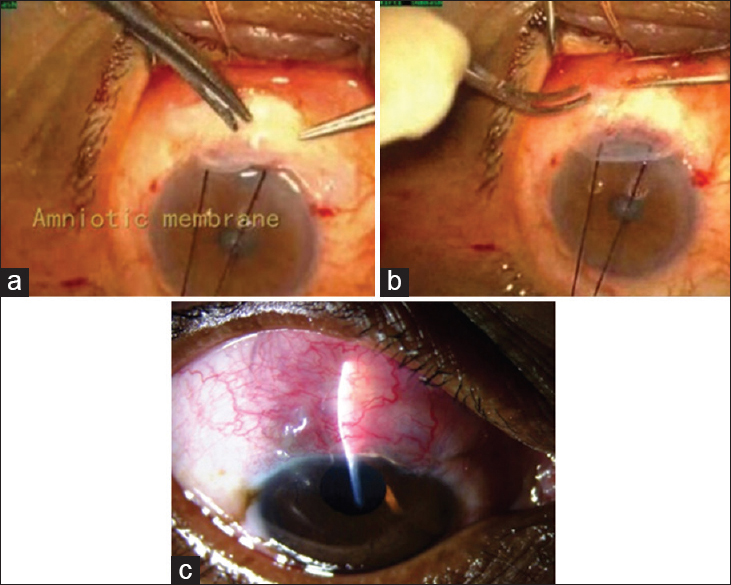 Figure 4: (a and b) Intra-operative placement of amniotic membrane under the conjunctiva during trabeculectomy. (c) Postoperative bleb after 2 weeks