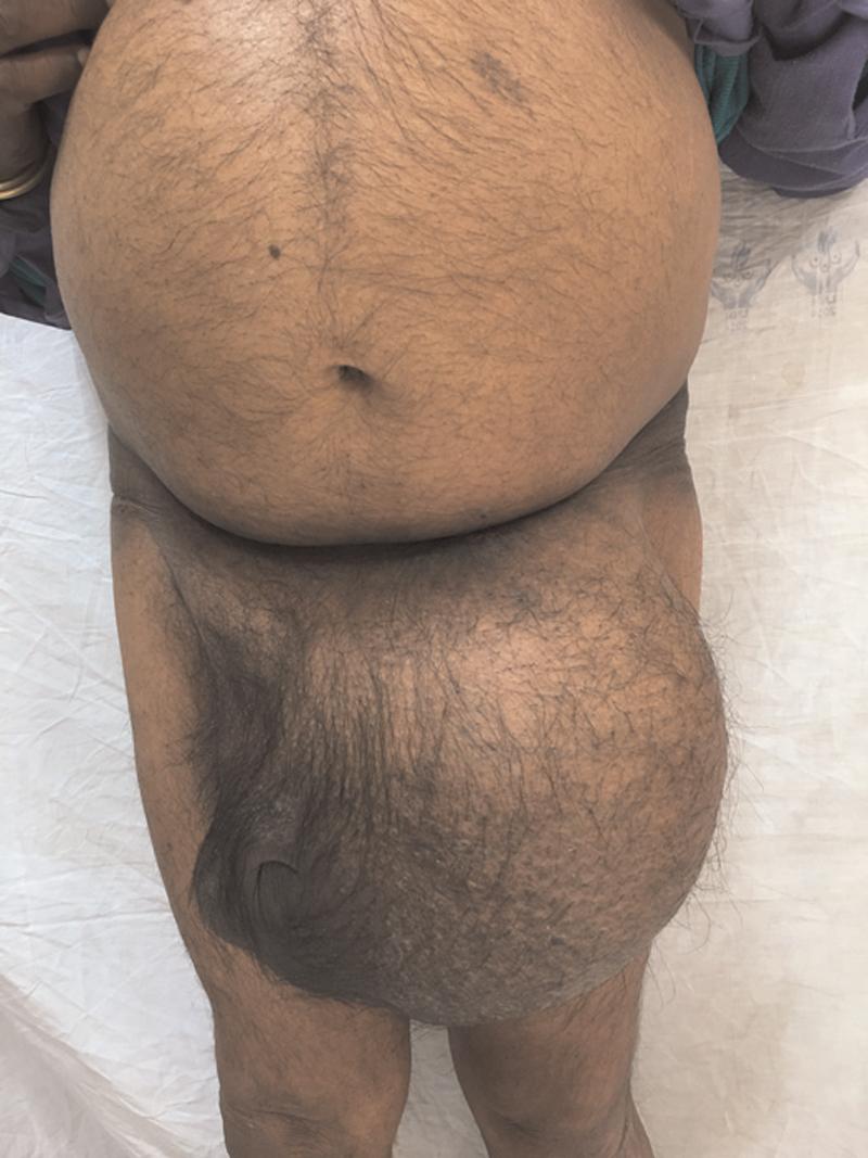Scrotal Abdomen A Massive Inguinal Hernia Mittal S Mishra K