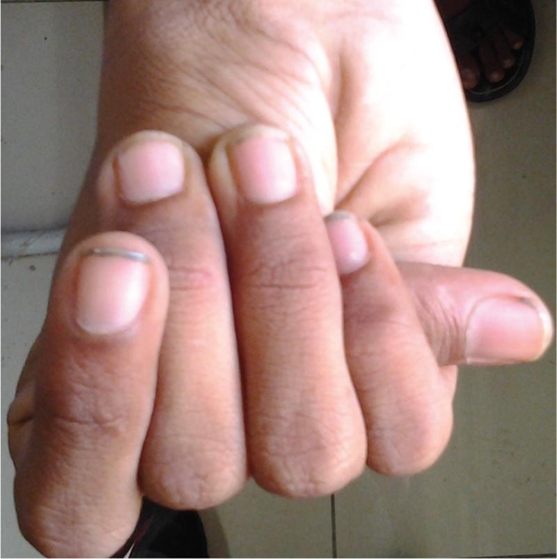 Wrist (Walker–Murdoch) and Thumb (Steinberg) Signs Gupta S, Gupta N ...