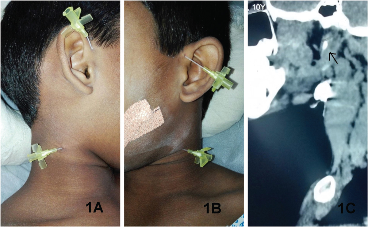 Branchiootic Syndrome − Rare Case Reports of Patients With Complete