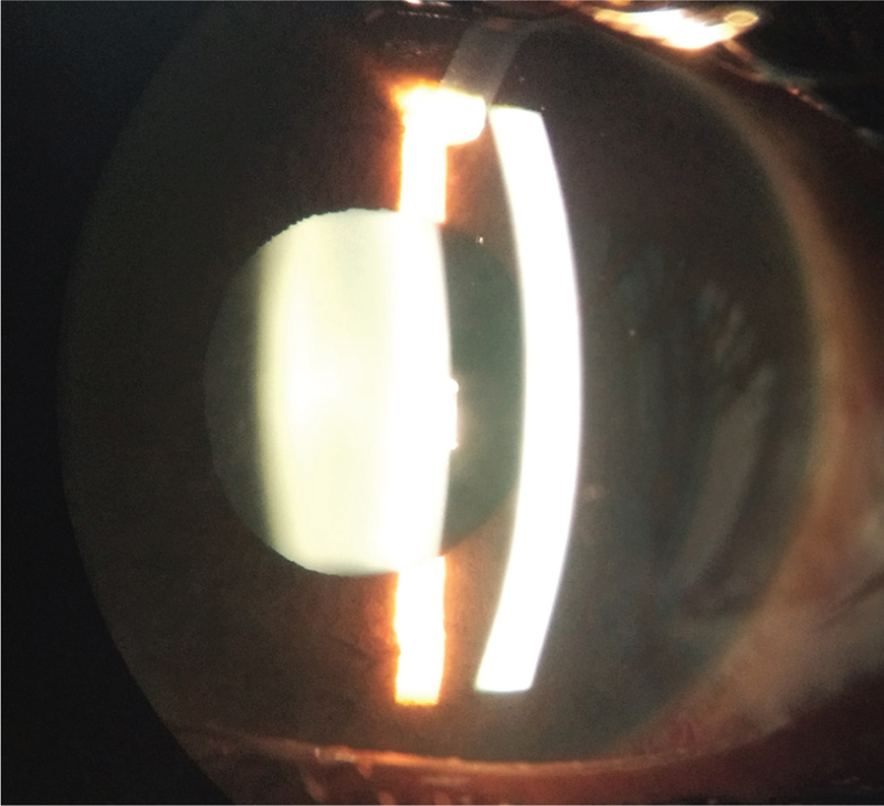 Figure 8: Postoperative Day 1 slit lamp photograph of the patient