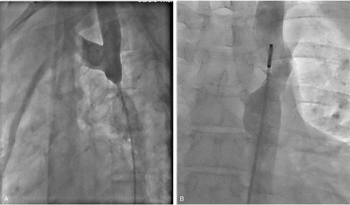 Figure 4 (a) Preprocedural angiographic image of case 3 showing segment of coarctation. (b) Post balloon dilatation angiographic image of case 3