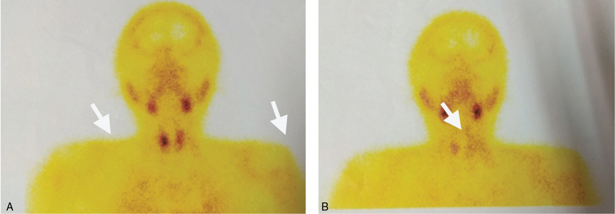 "Figure 9 ""A"" (20 min) and ""B"" (2 h): MIBI scintigraphy reveals increased radiotracer uptake along right thyroid gland; the radiotracer activity is noted to persist on the 2 h image"