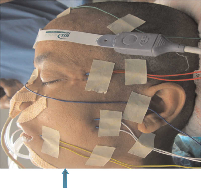 Figure 3 Placement of needle electrodes on the left side for intraoperative electrophysiological monitoring of facial and trigeminal nerves.