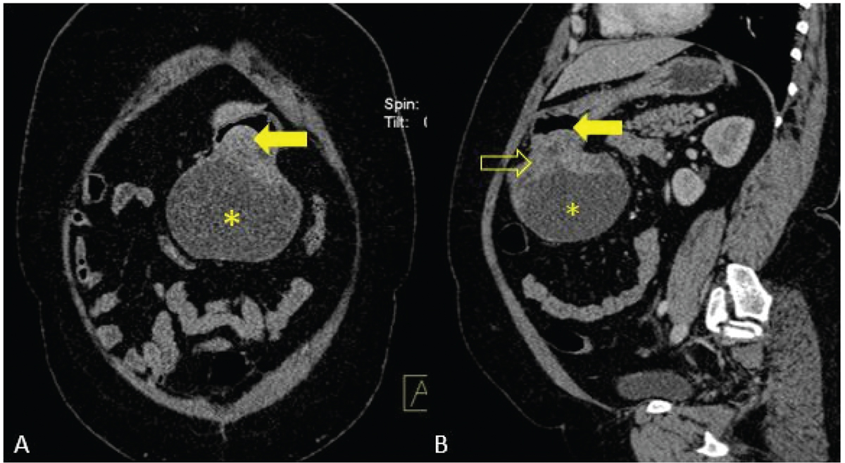 Figure 11 Contrast enhanced coronal (A) and sagittal (B) CT images show an exophytic, predominantly cystic abdominal mass (star) arising from the antropyloric region of stomach (arrow). The mass shows peripheral enhancing solid component (open arrow) in periphery